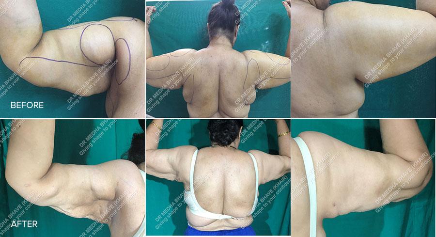 Liposuction High Definition